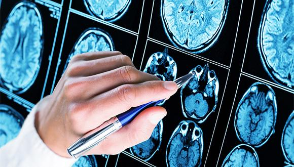 פתרון החידה המדעית שיעניק תקווה לחולי אפילפסיה